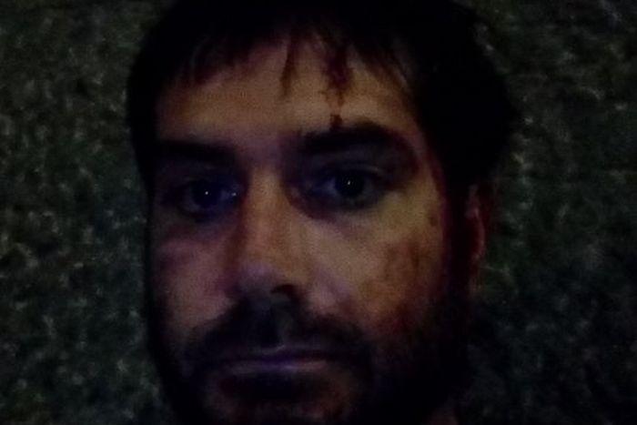 МВР призна официално, че журналистът Димитър Кенаров е бит и незаконно задържан от полицията