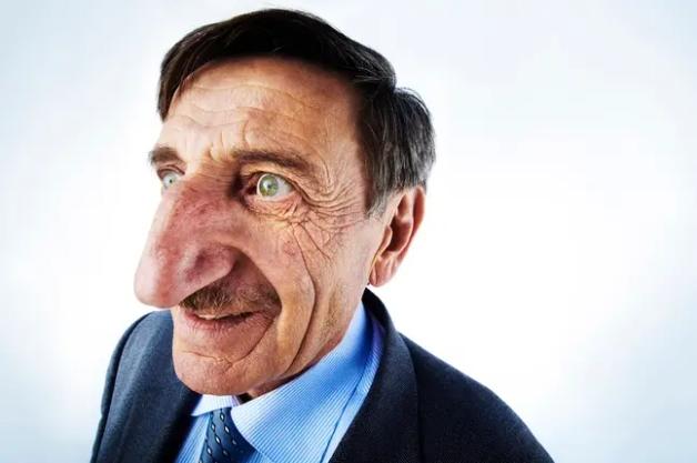 Турчин държи рекорда за най-дългия нос в света